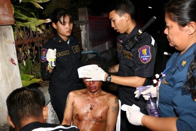 หนุ่มนั่งก๊งเหล้า เมาถูกเพื่อนร่วมวงฟันหัวเลือดสาด